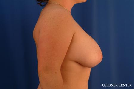 Breast Reduction: Patient 34 - Before Image 3