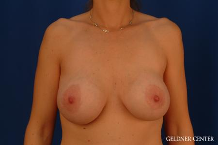 Breast Lift: Patient 32 - Before Image 1