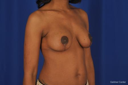 Breast Lift Streeterville, Chicago 2379 -  After Image 4