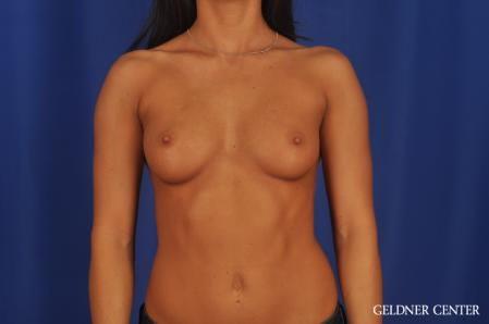 Breast Augmentation: Patient 175 - Before Image 1