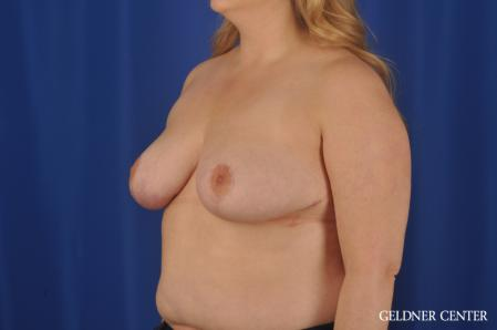 Breast Reduction: Patient 32 - After Image 4