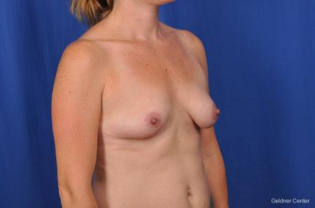 Breast Augmentation Hinsdale, Chicago 2531 - Before Image 3