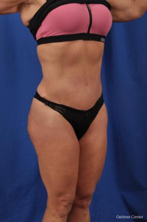 Abdominoplasty: Patient 7 - After Image 2