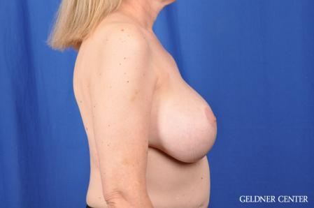 Breast Lift: Patient 51 - After Image 3