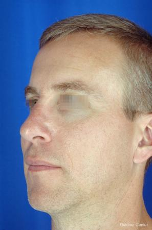 Rhinoplasty For Men: Patient 1 - After Image 4