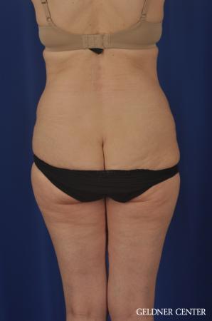 Liposuction: Patient 33 - Before 4