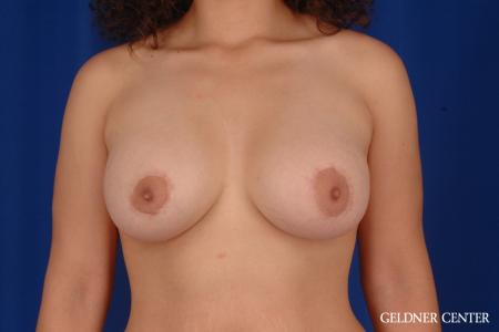 Breast Augmentation: Patient 160 - After Image 1