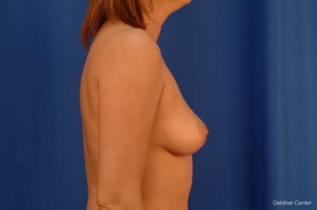 Chicago Breast Augmentation 2532 - Before Image 2