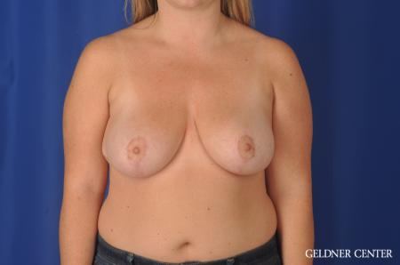 Chicago Breast Reduction 11855 -  After Image 1