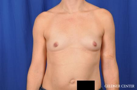 Breast Augmentation Lake Shore Dr, Chicago 4286 - Before Image 1