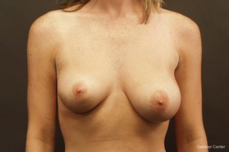 Chicago Breast Lift 2537 - Before Image 1