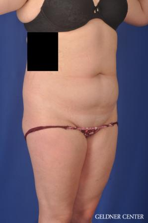 Liposuction: Patient 45 - Before and After Image 2