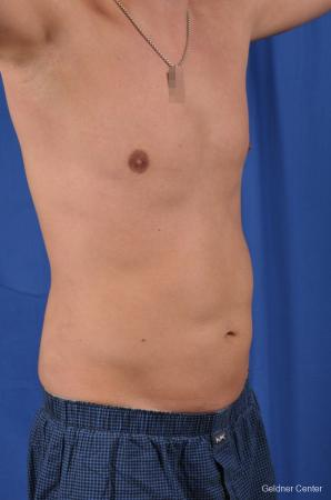 Liposuction For Men: Patient 5 - After Image 2