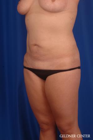 Liposuction: Patient 46 - After Image 4