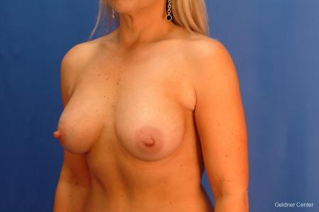 Breast Augmentation Hinsdale, Chicago 2632 -  After Image 4