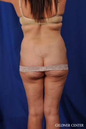 Liposuction: Patient 43 - Before 4