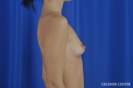 Breast Augmentation: Patient 166 - Before Image 3