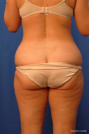 Vaser lipo patient 2520 before and after photos - Before and After Image 4