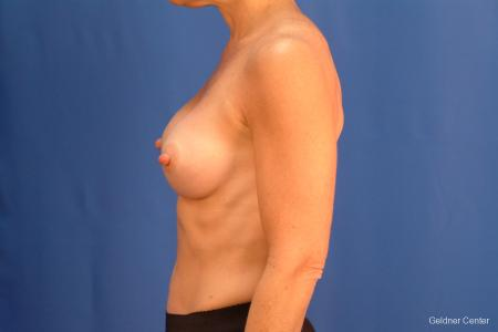 Chicago Breast Augmentation 2635 -  After 4