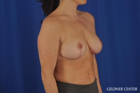 Breast Reduction Hinsdale, 4287 -  After Image 2