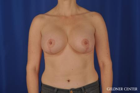 Chicago Breast Lift 4289 -  After Image 1