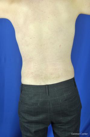 Liposuction For Men: Patient 3 - After Image 4