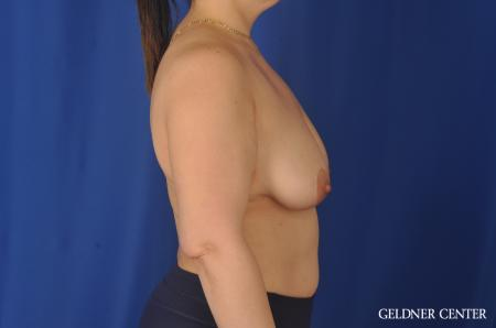 Complex Breast Augmentation: Patient 32 - Before Image 3