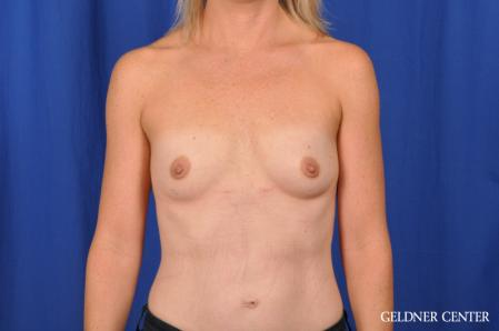 Breast Augmentation: Patient 186 - Before Image 1