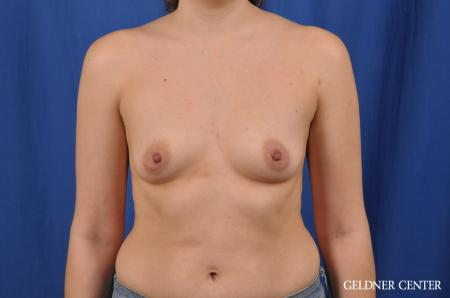 Breast Augmentation: Patient 144 - Before Image 1