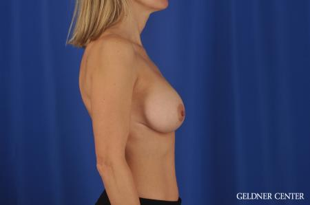 Breast Augmentation Lake Shore Dr, Chicago 8748 -  After Image 2