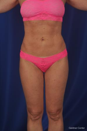 Vaser lipo patient 2069 before and after photos - After Image