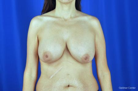 Breast Augmentation: Patient 5 - Before Image 1