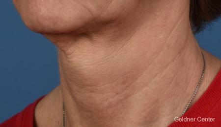 SkinPen®: Patient 10 - Before 1