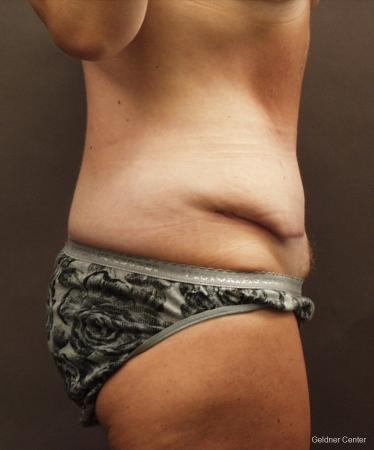 Liposuction: Patient 16 - Before Image 2