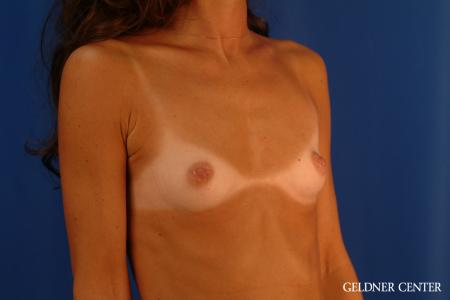 Breast Augmentation: Patient 113 - Before Image 2