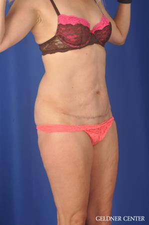 Chicago Abdominoplasty 11854 -  After Image 2