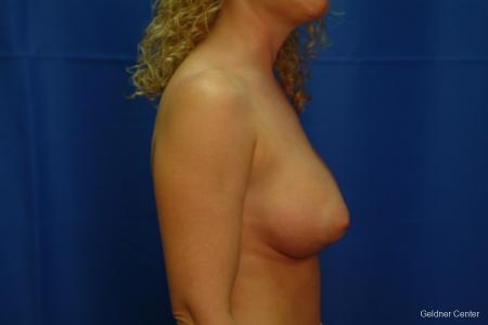 Breast Augmentation Lake Shore Dr, Chicago 2436 -  After Image 2