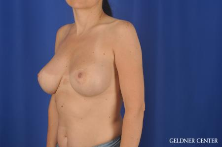 Chicago Breast Lift 6656 -  After Image 4
