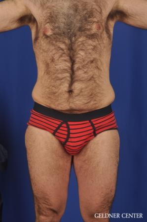 Liposuction-for-men: Patient 10 - Before Image