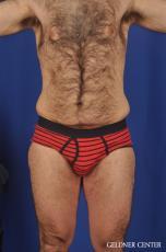 Liposuction-for-men: Patient 10 - Before