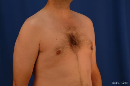 Gynecomastia: Patient 4 - After Image 3