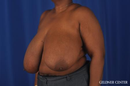 Chicago Breast Reduction 11871 - Before and After Image 4