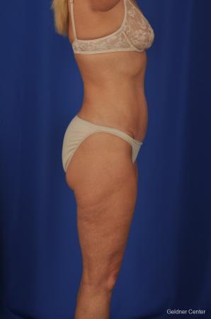 Lipoabdominoplasty: Patient 2 - After Image 3