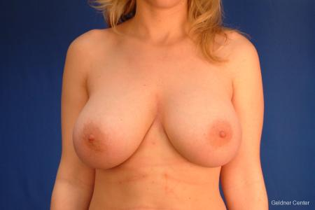 Chicago Complex Breast Augmentation -  After Image 1