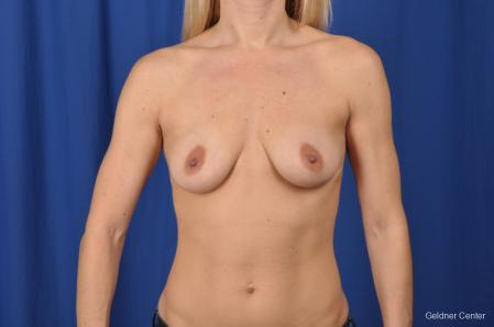 Breast Augmentation: Patient 155 - Before Image 1