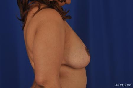 Chicago Breast Reduction 2375 -  After Image 2