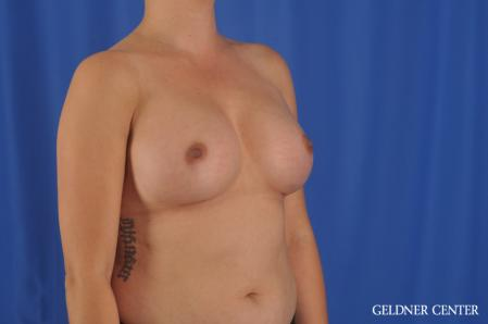 Breast Augmentation: Patient 180 - After Image 2