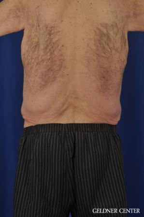 Abdominoplasty For Men: Patient 3 - Before Image 4