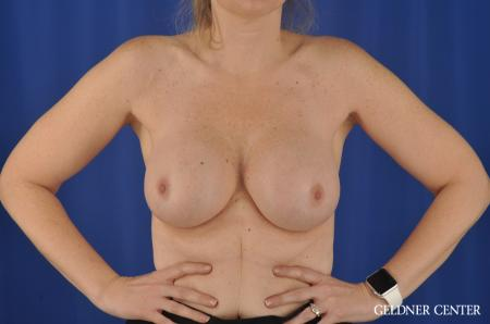Chicago Complex Breast Augmentation 8750 -  After 5