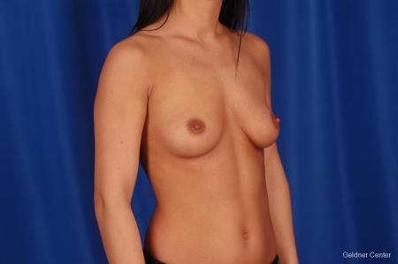 Breast Augmentation Lake Shore Dr, Chicago 2402 - Before Image 3
